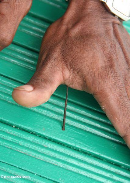 den Blutegel Blut-saugen, der für die Hand Kalimantan einer Person